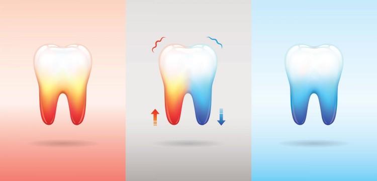 Ciri gigi sensitif