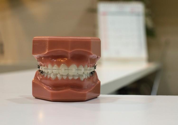 Pencegahan Gigi Berlubang